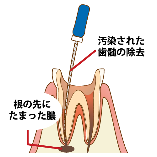 根管治療の進め方