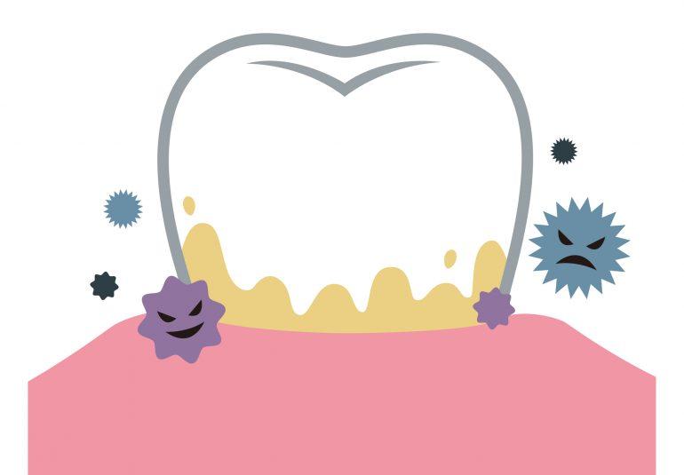 歯を失う原因第一位「歯周病」