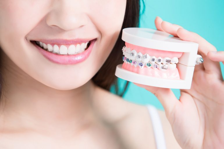 矯正歯科治療とは?